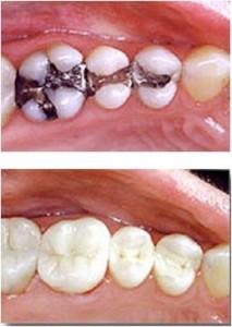 Photo comparing amalgam to white fillings