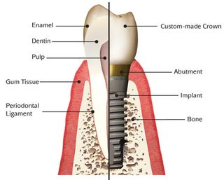 Diagram of a dental implant