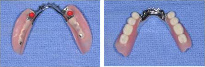 Photo of implant supported partial denture