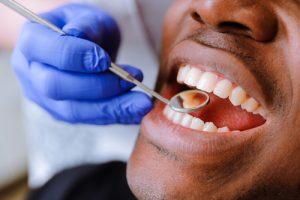 dental cleaning and exam arlington dentist dr. alana macalik