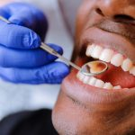 7 Things That Happen During a Dental Cleaning and Exam
